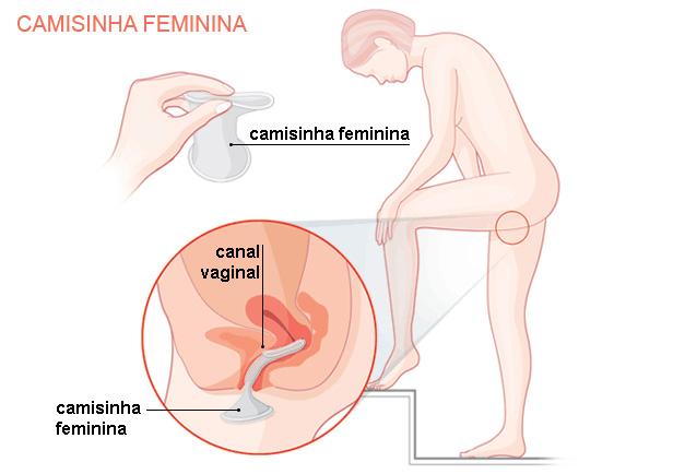 como colocar camisinha feminina